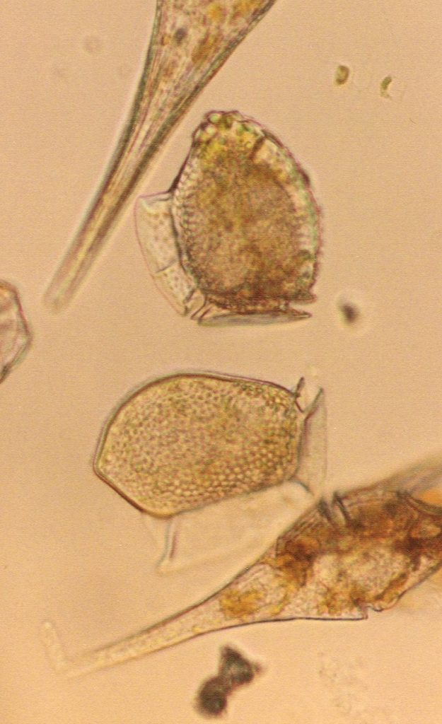 <i>Dinophysis</i> and other dinoflagellates (D. Anderson)