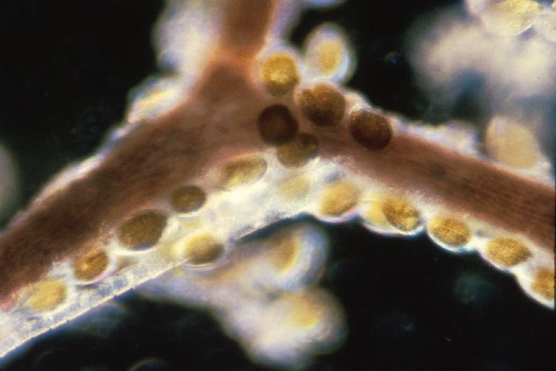 <i>Gambierdiscus</i> cells on macroalgae. (Y. Fukuyo)